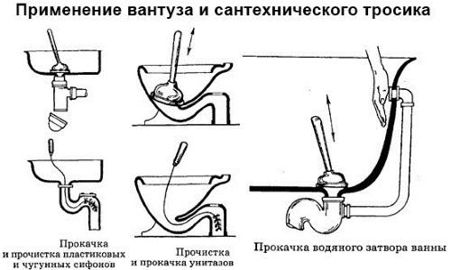 Схема применения вантуза